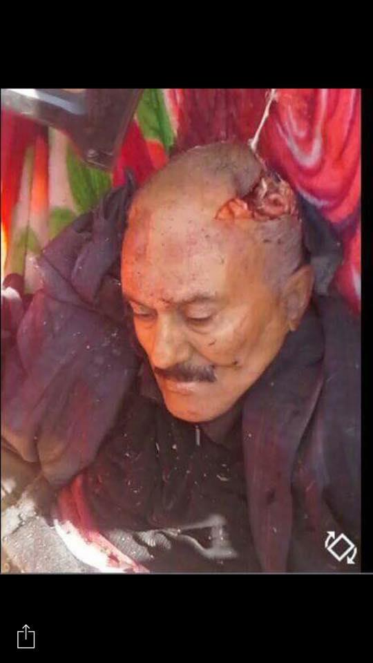 هذه الصورة يتم تداولها على نطاق واسع على انها تعود للرئيس اليمني وهوميت